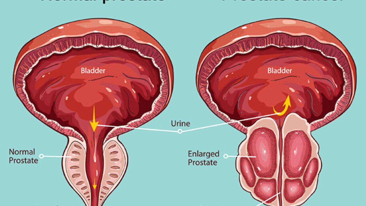 https://www.westafricanpilotnews.com/wp-content/uploads/2021/06/Prostate-Cancer-image-1280x720.jpg