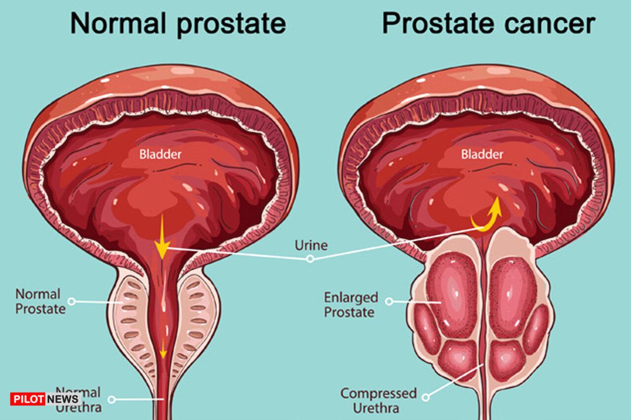 https://www.westafricanpilotnews.com/wp-content/uploads/2021/06/Prostate-Cancer-image-1280x853.jpg